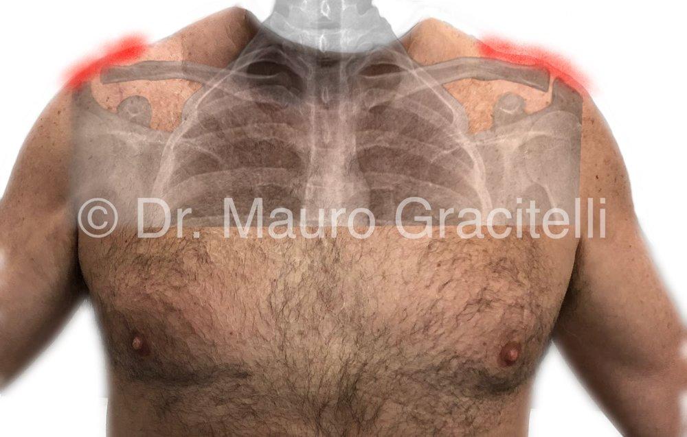 Artroseacromioclavicular_local da dor.jpg