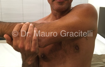 Artroseacromioclavicular_aducao.jpg
