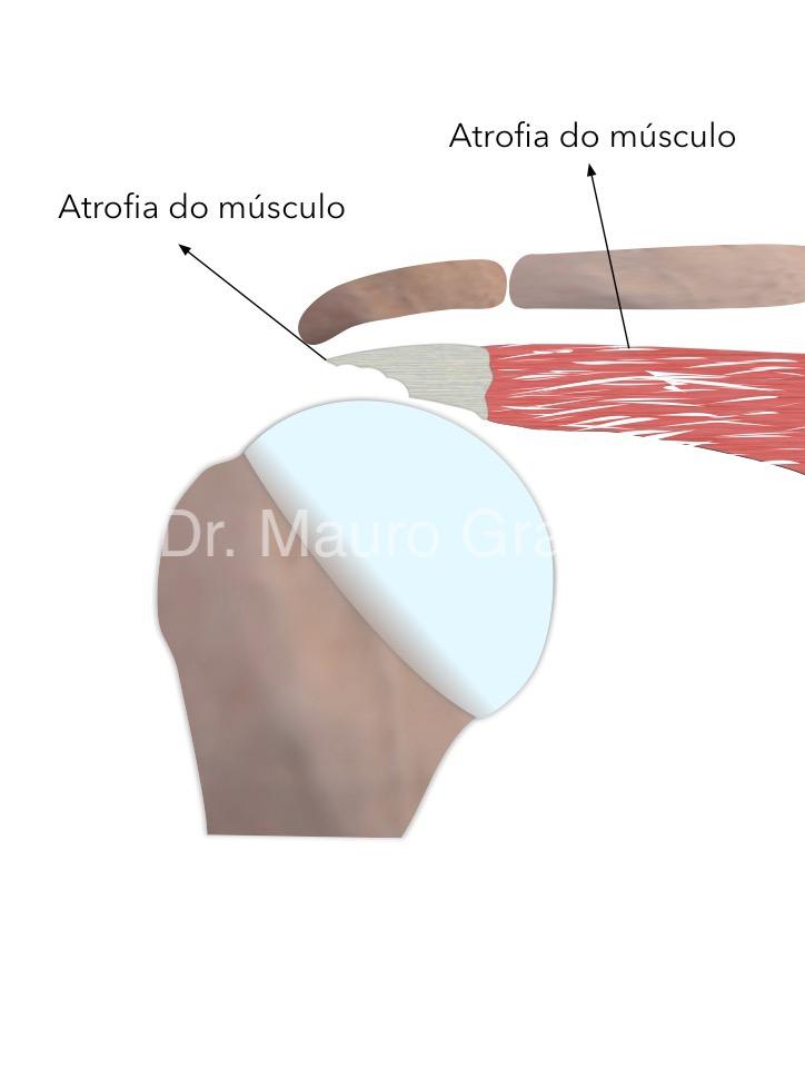 Manguito rotador com atrofia gordurosa