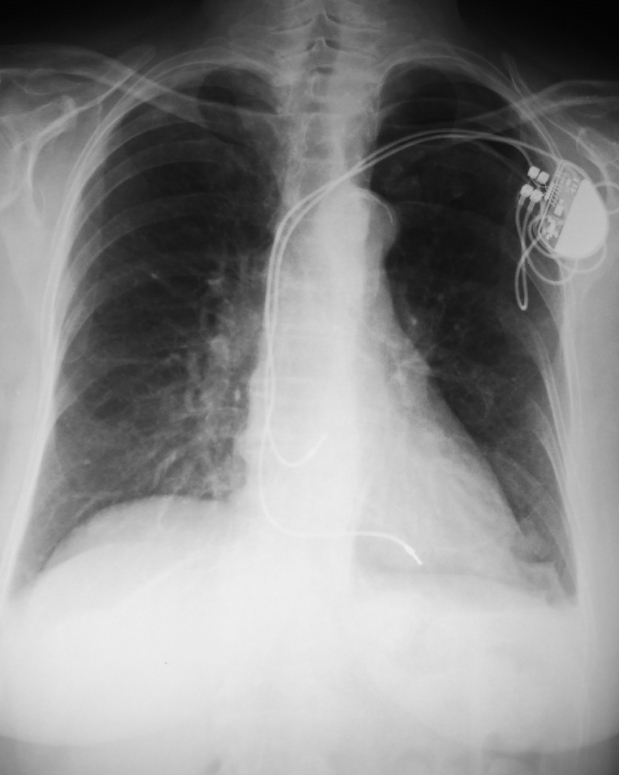 27. The cardiac pacemaker - invented by John Hopps.