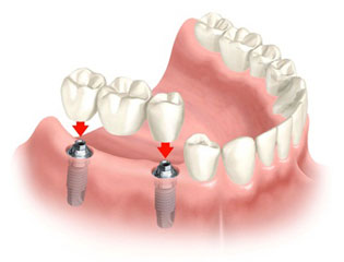 Implant Retained Bridge.jpg