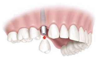 Single Implant.jpg