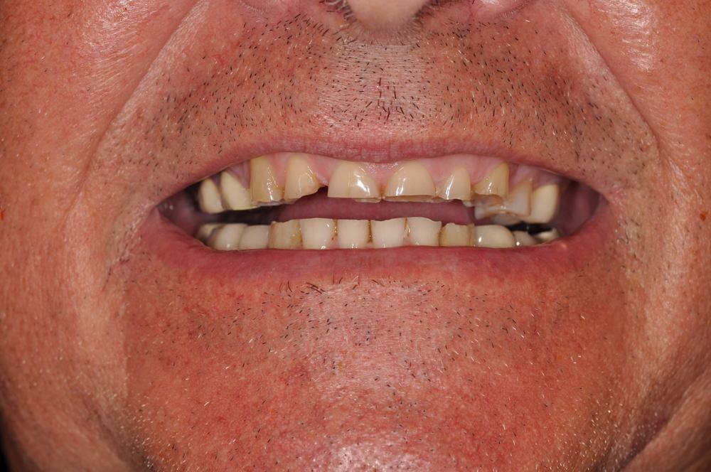 Kaufman Dental Closeup Before 1.jpg
