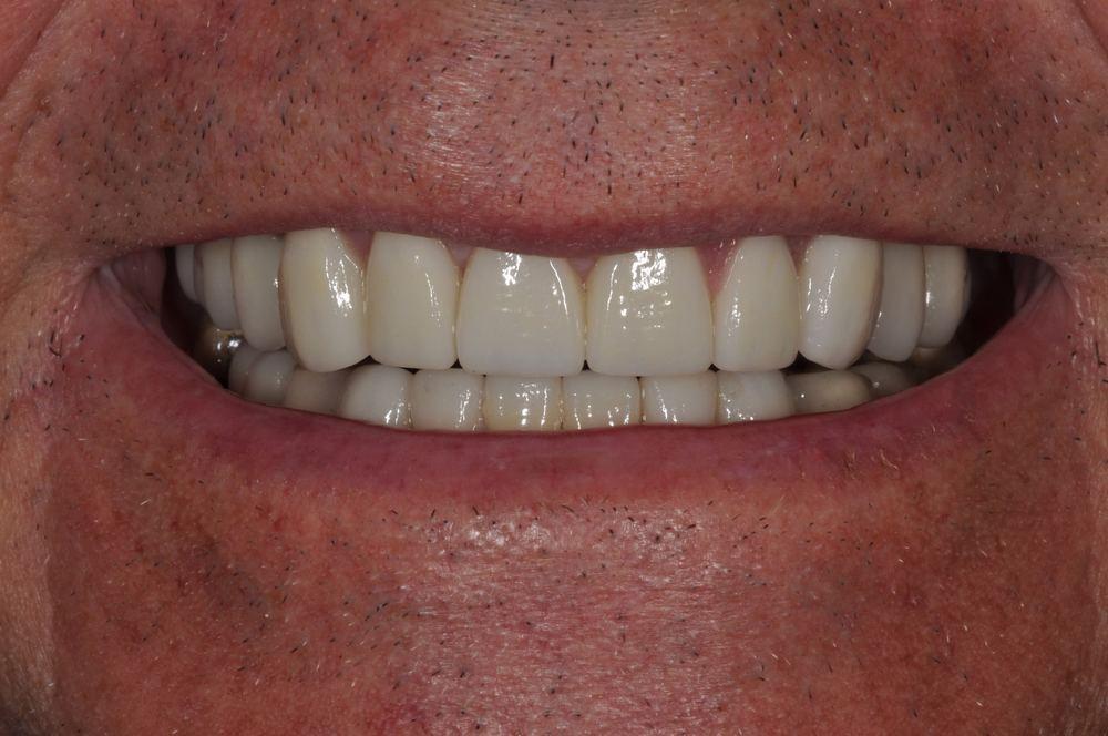Kaufman Dental Closeup After 1.jpg