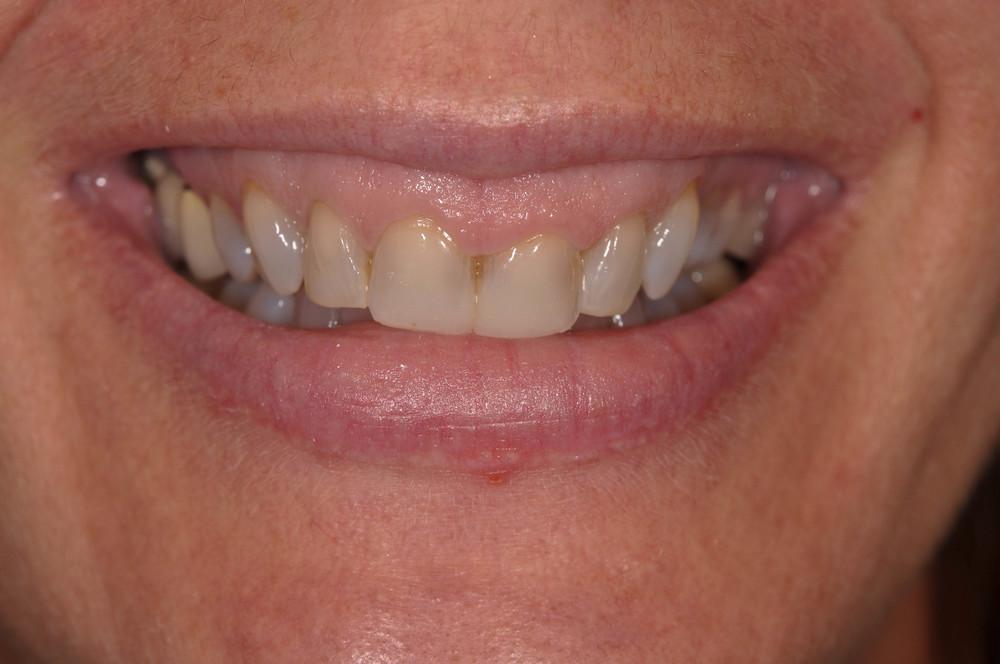 Kaufman Dental Closeup Before 5.jpg