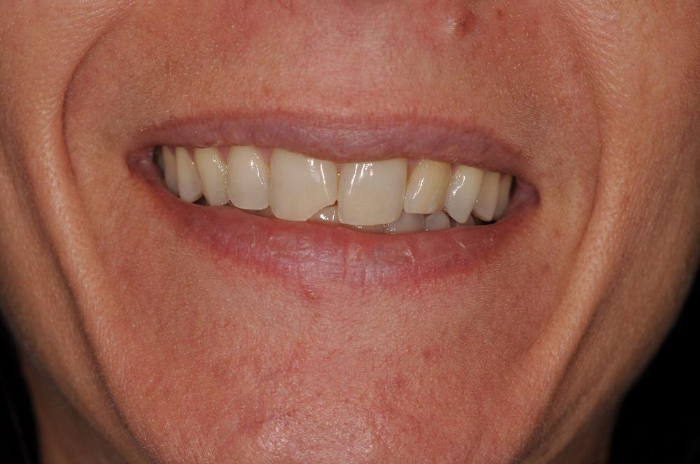 Kaufman Dental Closeup Before 6.jpg