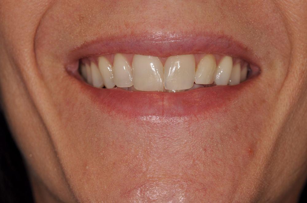 Kaufman Dental Closeup After 6.jpg