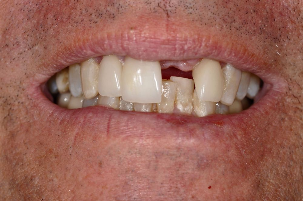Kaufman Dental Closeup Before 4.jpg