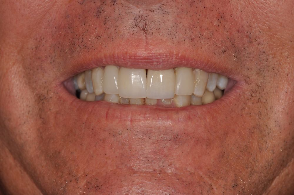 Kaufman Dental Closeup After 4.jpg