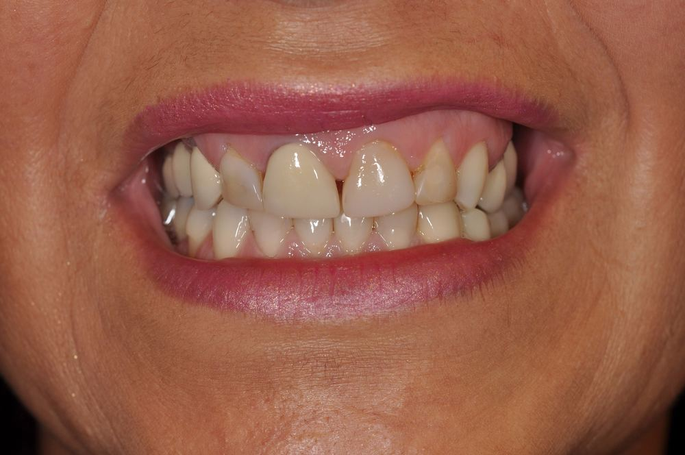 Kaufman Dental Closeup Before 9.jpg