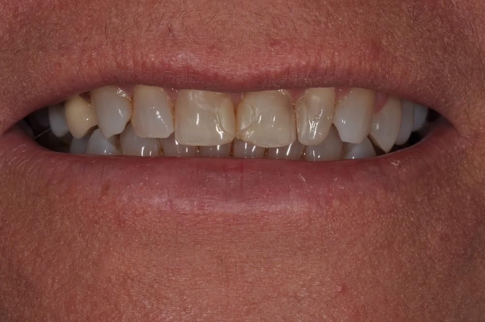 Kaufman Dental Closeup Before 9.jpg
