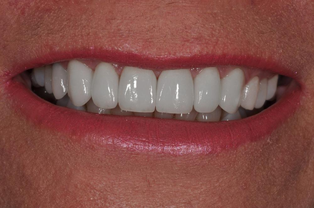 Kaufman Dental Closeup AFter 9.jpg