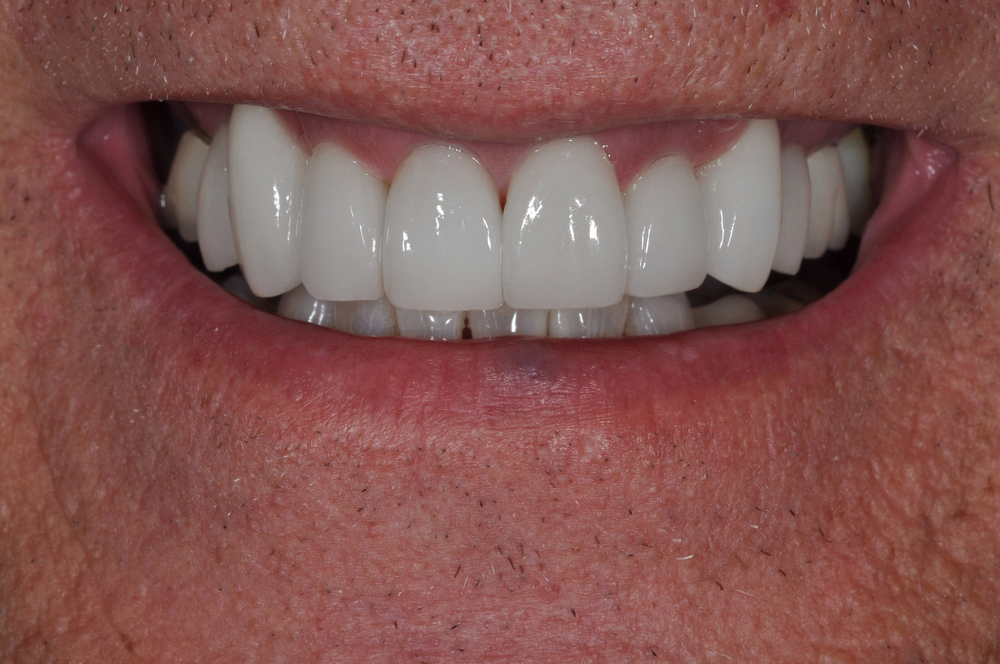 Kaufman Dental Closeup AFter 9.jpg