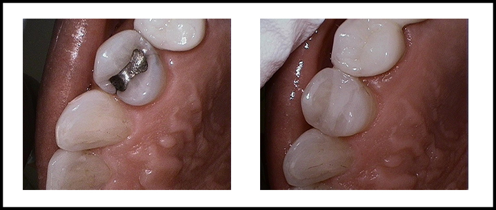 Amalgam Removal Before and After 3.jpg