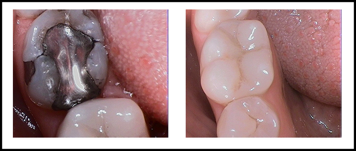 Amalgam Removal Before and After 4.jpg