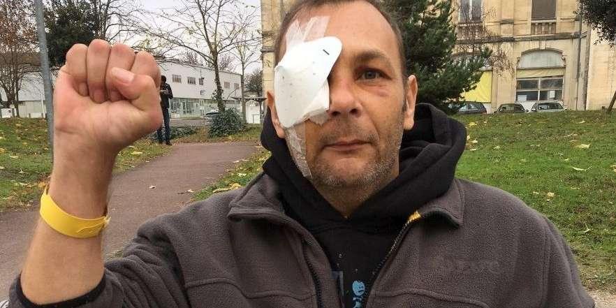 Horticulteur sur l'île d'Oléron, Jean-Marc Michaud a perdu l'usage de son oeil droit à la manifestation des gilets jaunes du 8 décembre à Bordeaux. Ceux qui ne veulent rien savoir des violences policières contribuent directement à notre oppression et l'encouragent. C'est à eux que s'adresse la photo de cet homme éborgné, après tant d'autres, pour s'être élevé contre ce qu'il percevait comme l'injustice. Pour qu'ils cessent de détourner pudiquement les yeux. Osent affronter son regard. Gardent en tête son visage. Il faut interdire l'usage des flashballs ! Cela se discute ? Non.