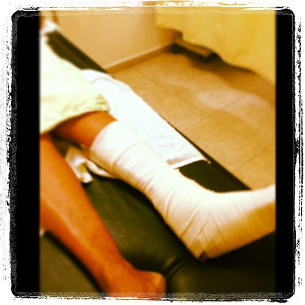 broken leg healed.jpg
