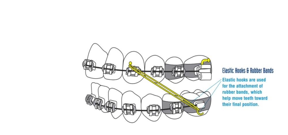 Elastic hooks & Rubber bands (aka Elastics)
