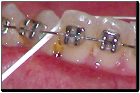 Food stuck in between teeth
