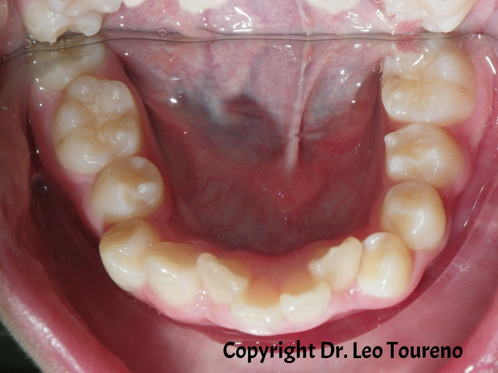 Occlusal Photo of Mandibular Dentition.jpg