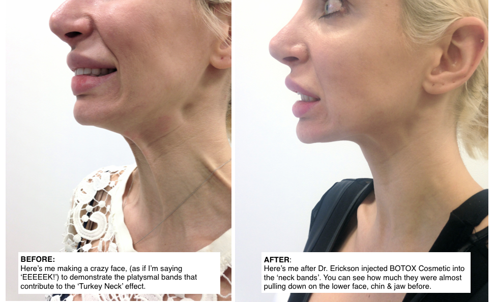 Nefertiti lift with BOTOX Cosmetic by Dr Quenby Erickson in Chicago