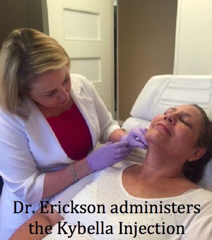 Watch as Dr Erickson explains the Kybella Procedure here