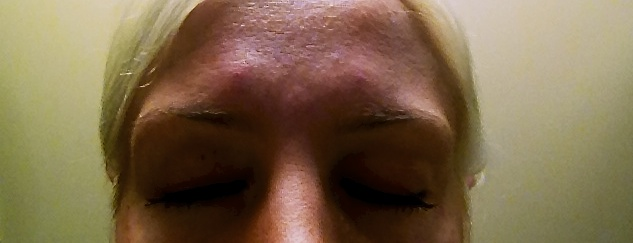 Yup, Just another view of my glorious Botox Bumps
