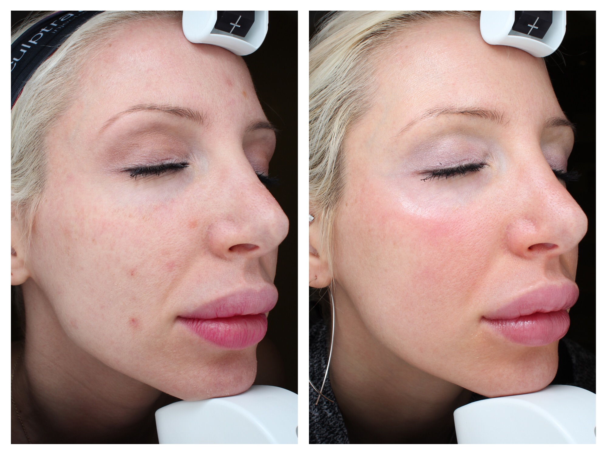 My before and after: 6 months after 2 Halo Laser  Resurfacing Treatments at Erickson Dermatology in Chicago