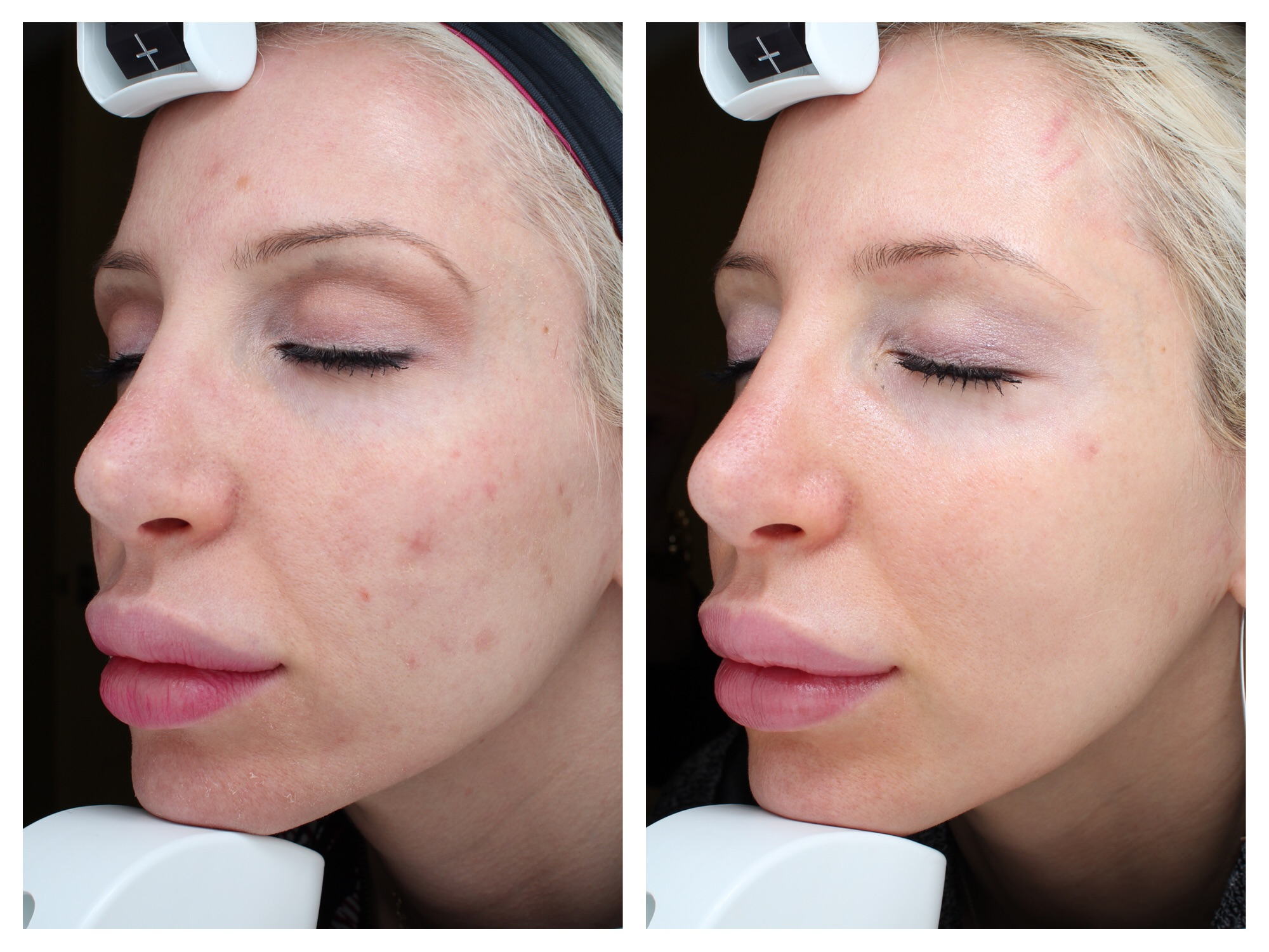 Before And After My Halo Laser Treatment Results Med E Spa