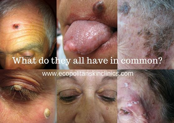 NOVEMBER Skin Clinic Advert .jpg