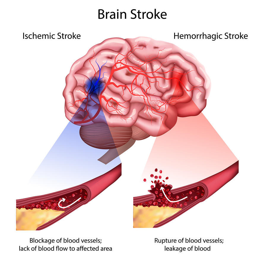 bigstock-Stroke-Types-Poster-Banner-V-277022434.jpg