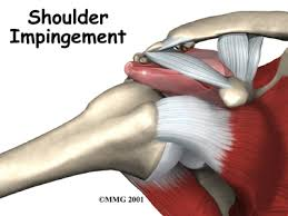 Shoulder impingement syndrome.  A common source of shoulder pain.