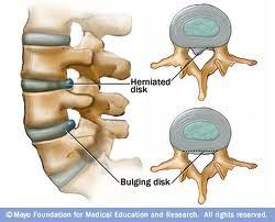 Disc Bulge vs. Disc Herniation