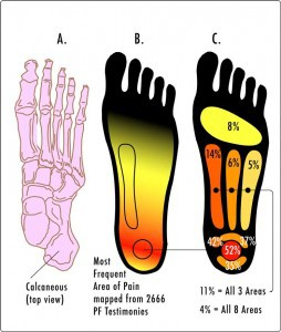 Areas of pain for patients with plantar fasciitis