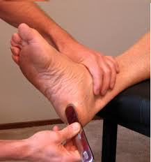 Graston technique for plantar fasciitis