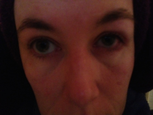 The colour coming up in my left eye the next morning.