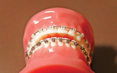 Sierk Orthodontics makes use of the latest self-ligating braces which allow the wire to move and often provide quicker results with less adjustments.