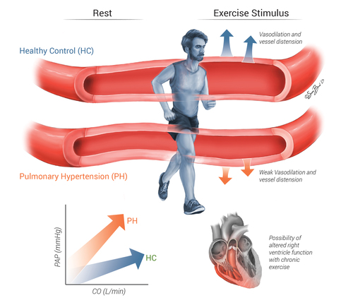 Pulmonary hypertension and exercise