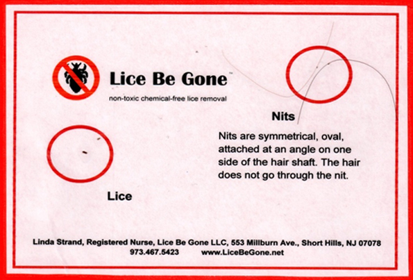 Samples of head lice and nits