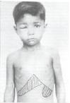 Arquivo do Dr. E. Dias, FIOCRUZ – Bambuí, MG