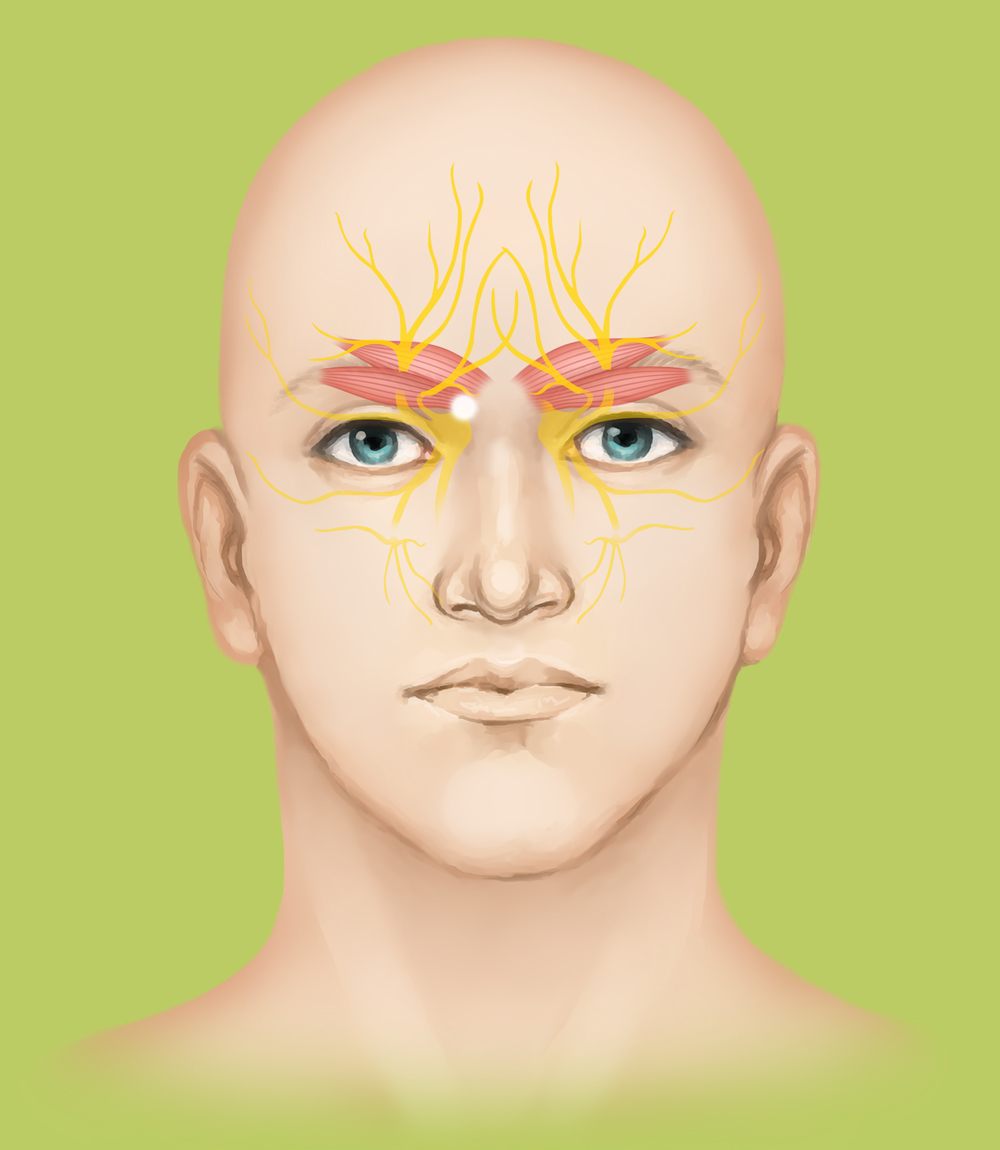 Supraorbital and supratrochlear nerves are decompressed.