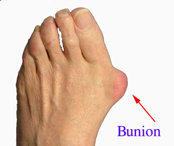 bunion-jpeg