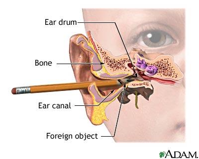 foreign-object-in-ear-jpg