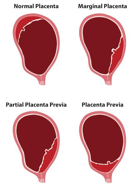 placenta_previa-jpg
