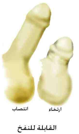 prosthesis-erect-flacid_infl-jpg