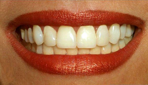 teeth-stem-cells-jpg