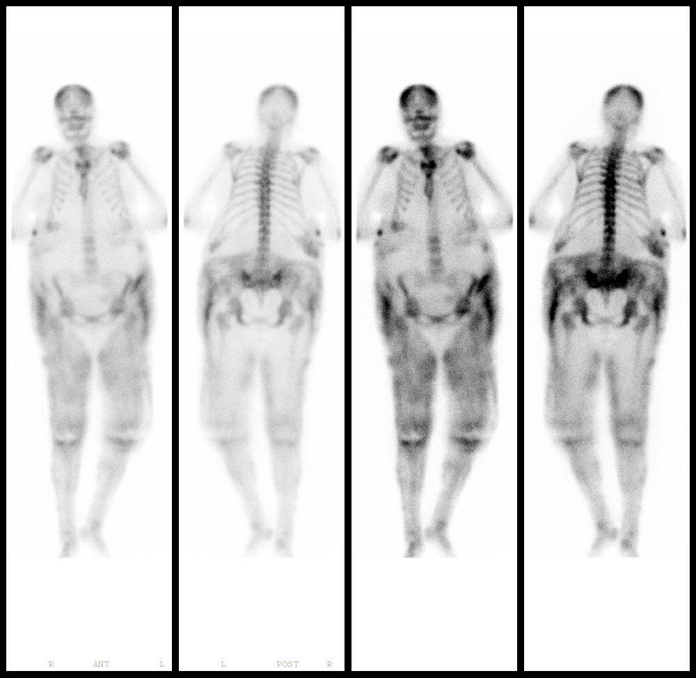 bone_screencap_calciphylaxis.jpg