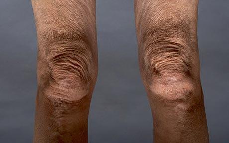 knees_1480949c.jpg