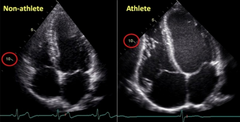 Thesse ultrasound images show the difference in chamber size of the hearts of a trained athlete and non-athlete. Notice Left ventricle wall thickness is increased in athlete v. non-athlete also to drive a stronger contraction and volume of blood pumped.