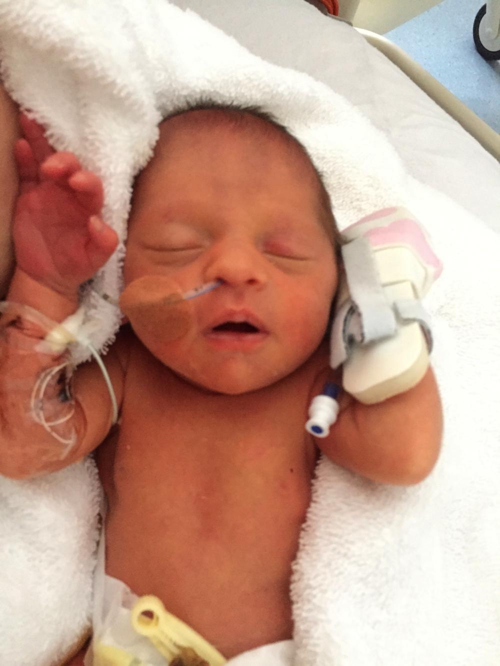 premature baby athlete
